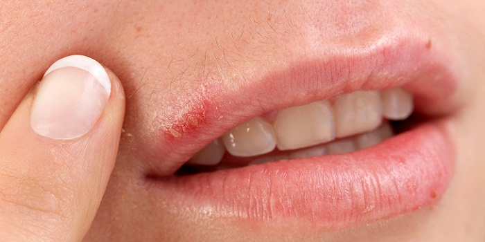 Eliminate Cold Sores Now