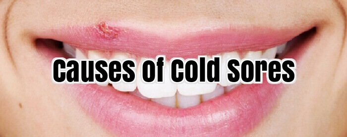 Causes of Cold Sores