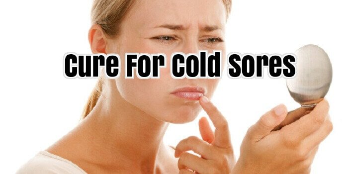 Cure For Cold Sores