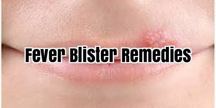 Fever Blister Remedies